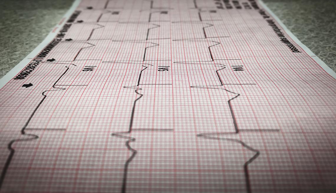 Gráfico de los latidos del corazón