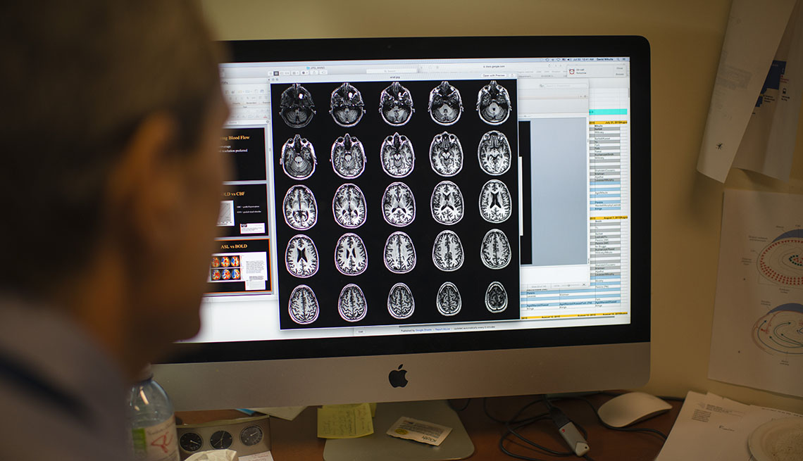researcher looks at brain scans