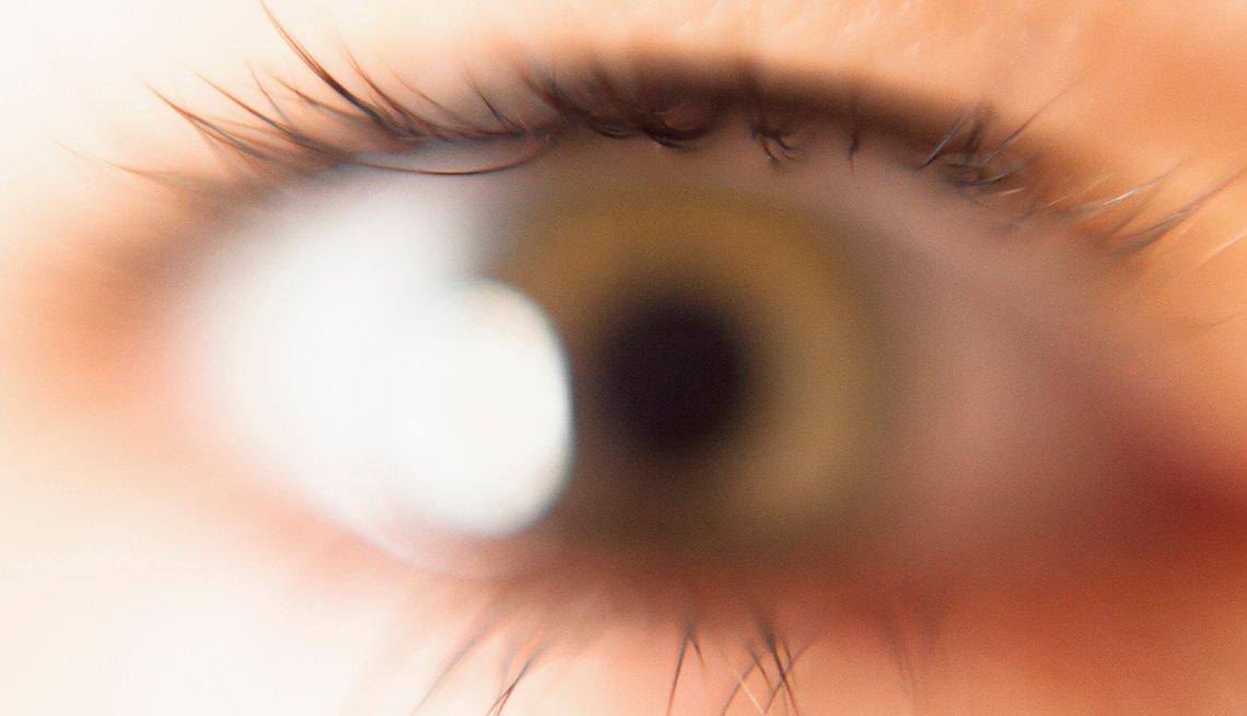 Vista borrosa del ojo de una persona
