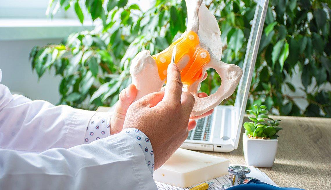 Un médico sostiene un modelo anatómico de una cadera