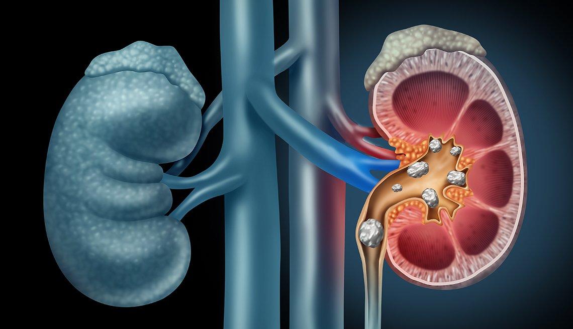 Gráfico que muestra unos riñones y cálculos renales