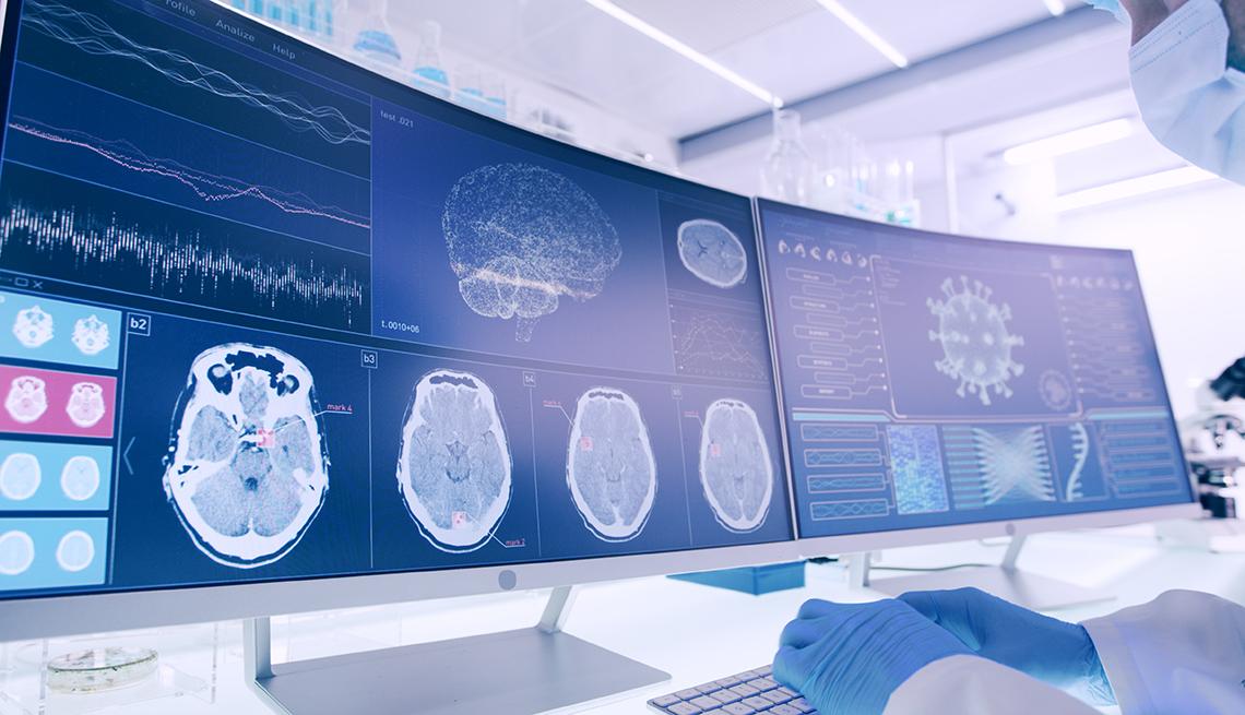 Profesional de la salud mira a varios monitores con imágenes computadorizadas del cerebro