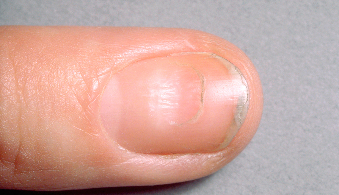close up of Beau's Lines on a fingernail