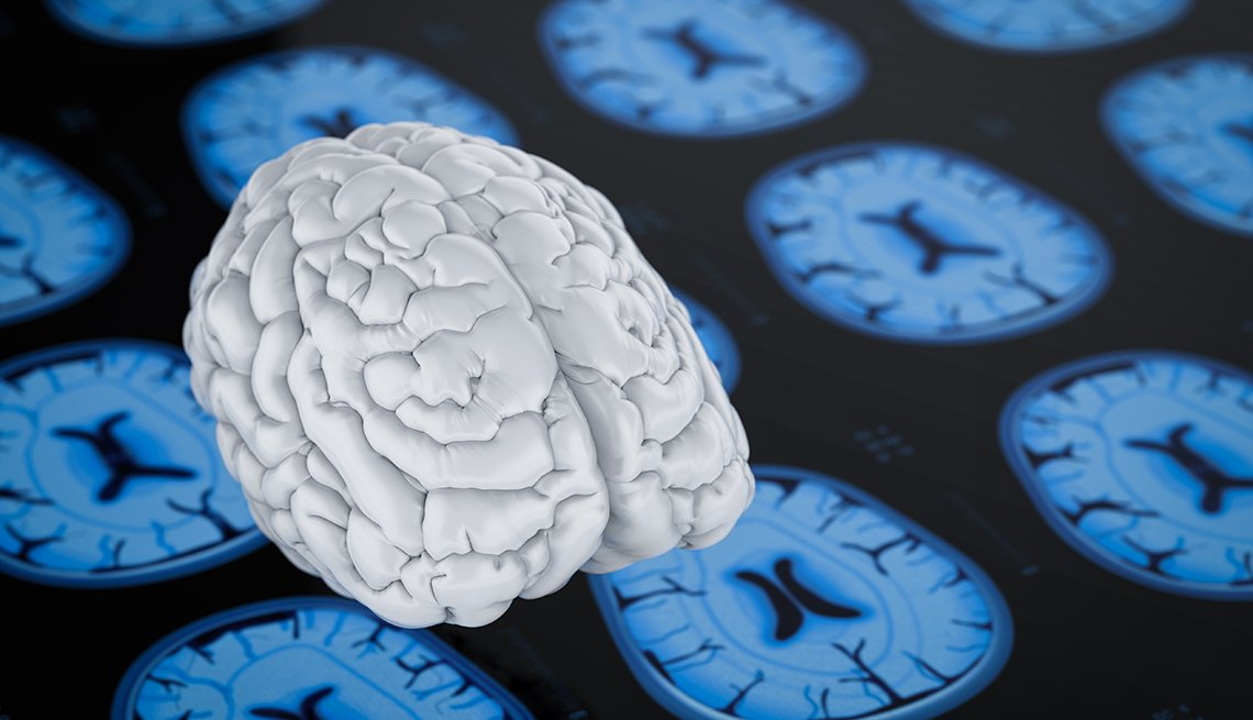 Cerebro sobre fondo de rayos x
