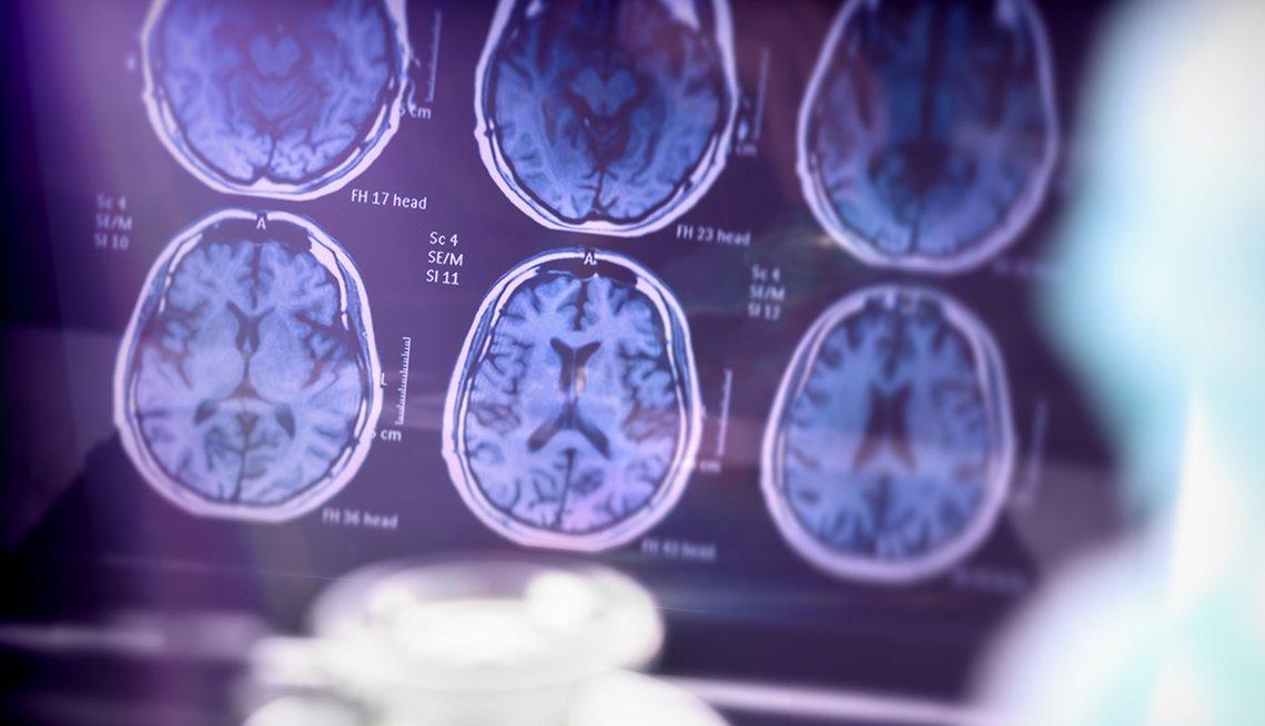 Imagen de un cerebro con Alzheimer