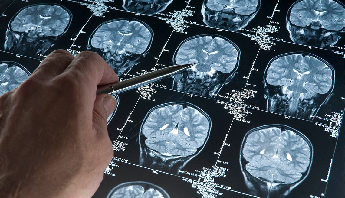 Hand pointing at brain scans