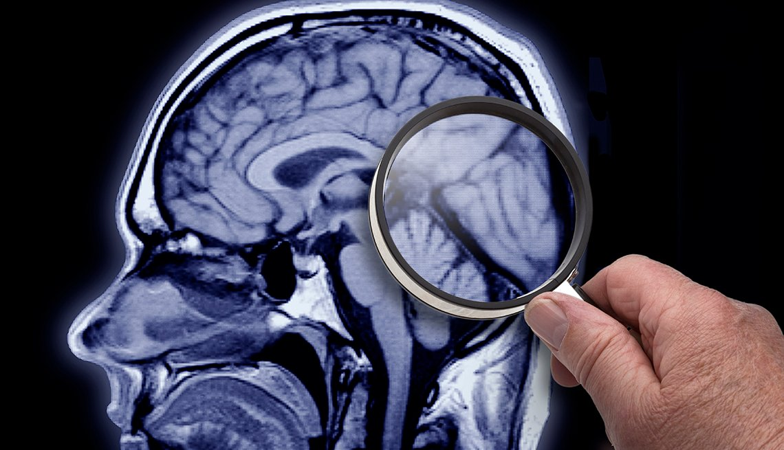 A brain scan with someone holding a magnifying glass