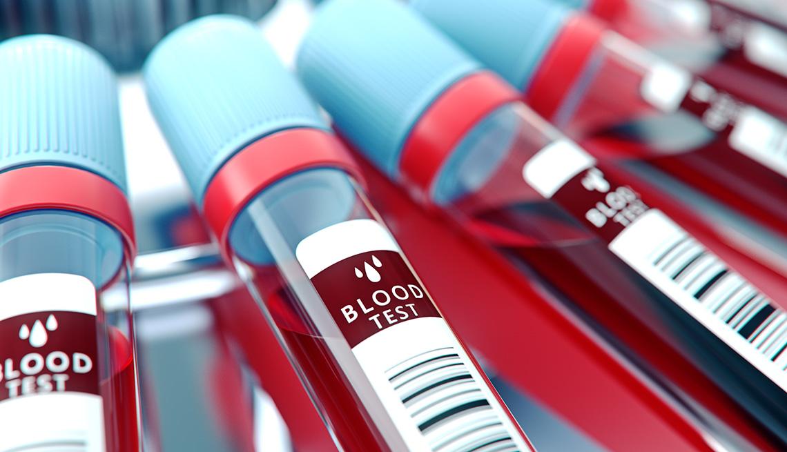 Pruebas de sangre en centrífuga de laboratorio