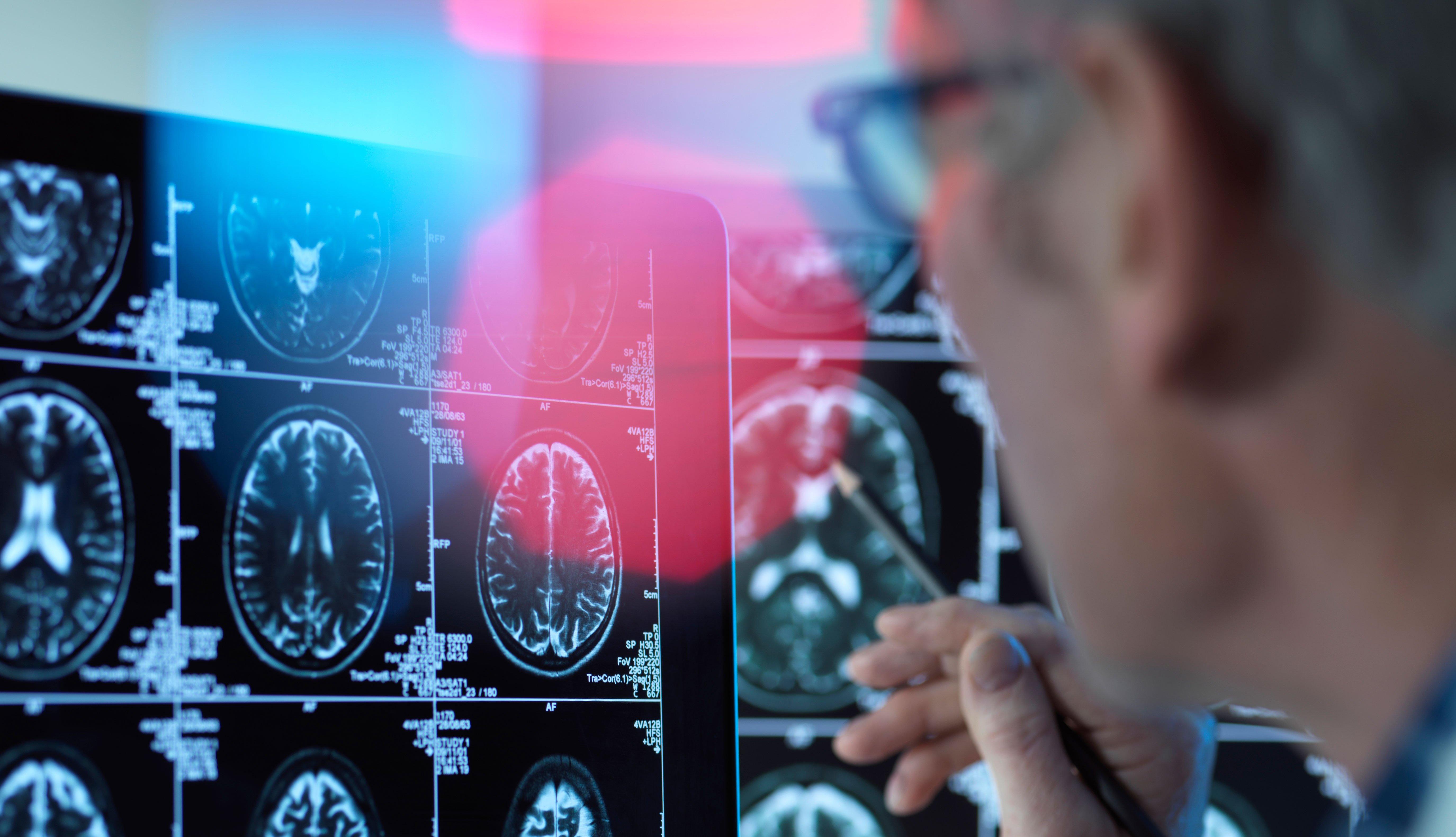 Un doctor mira una radiografía del cerebro