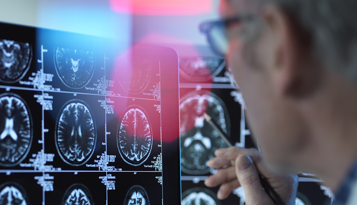doctor looking at brain scans