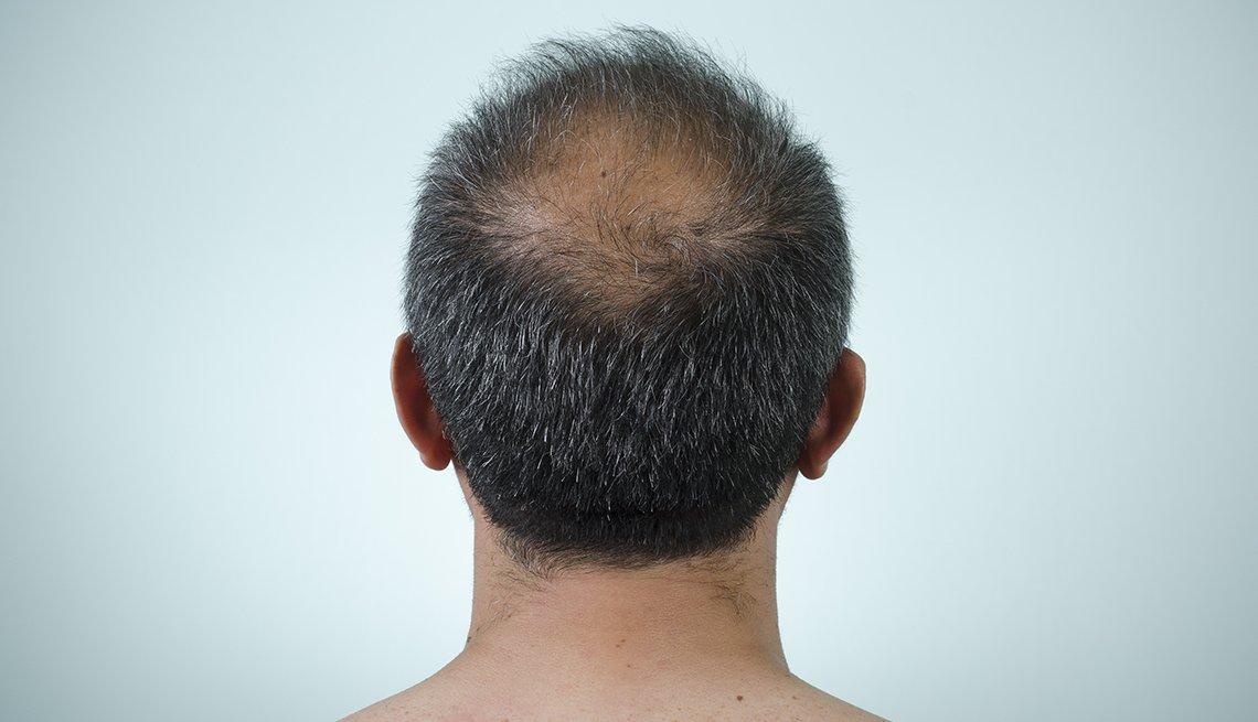 Parte trasera de la cabeza donde se aprecia un área con caída de cabello.