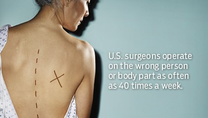 A patient's back marked with an X. U.S. surgeons operate on the wrong person or body part as often as 40 times a week.