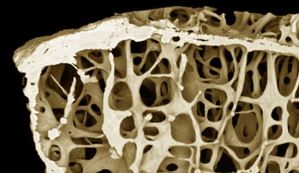 Osteoporosis from an 89-year old female