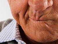 Un hombre mayor en una mueca de frustración. Los medicamentos que usted toma pican?