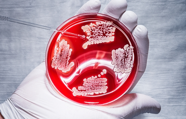 Placa de petri con un cultivo