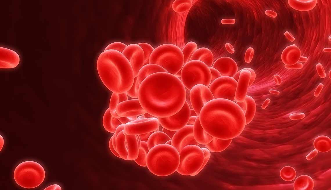 Coágulo de sangre