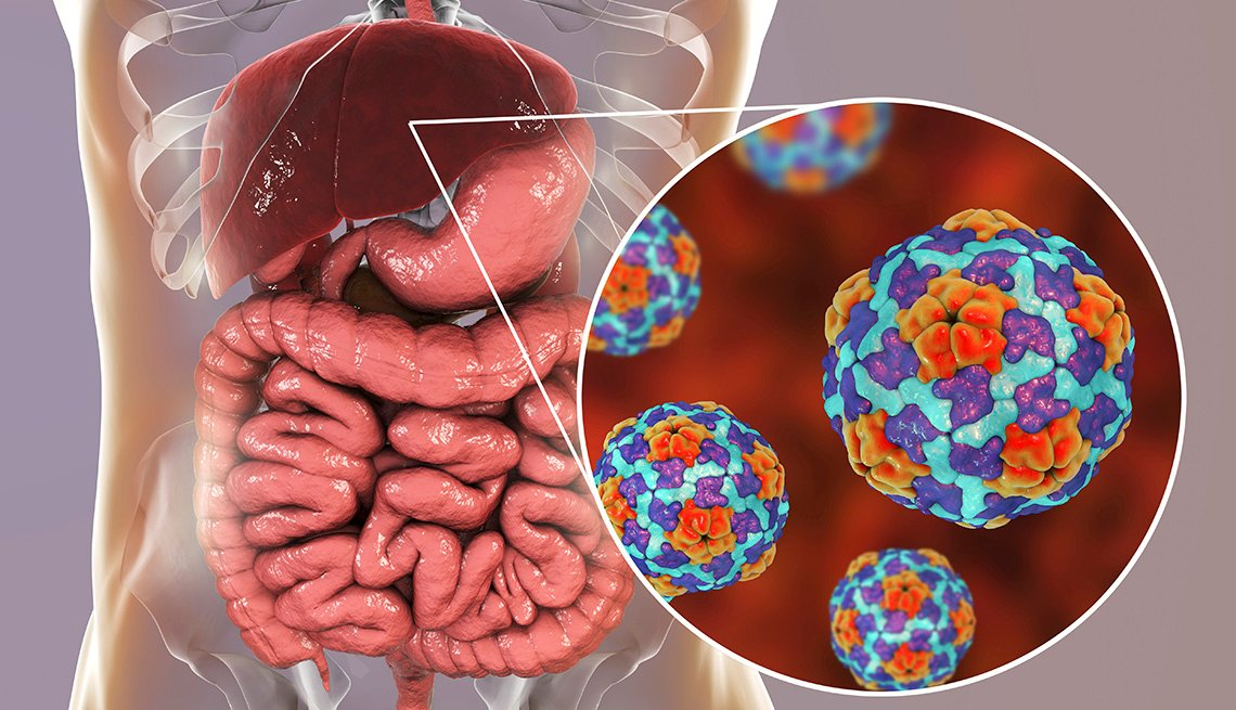 Illustration of a Hepatitis A infection.