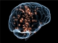 Gráfico de un cerebro - Consejos para prevenir un derrame cerebral