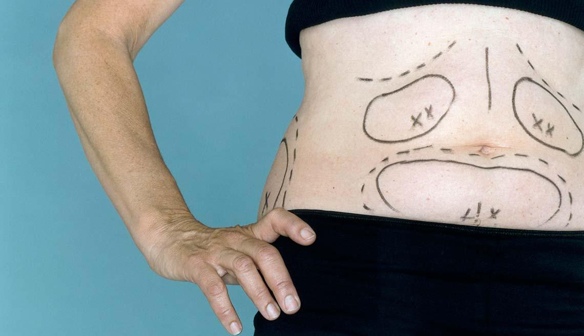 item 5 of Gallery image - Marcas para hacer una liposucción - Dietas para adelgazar poco saludables