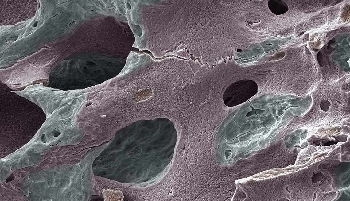 Imagen de un hueso humano con daños - Síntomas de la falta de carbohidratos en la dieta