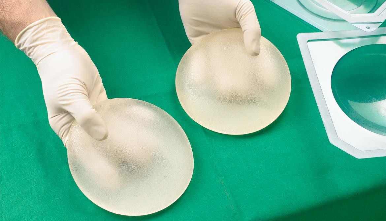 Implantes de seno - Preguntas al cirujano plástico
