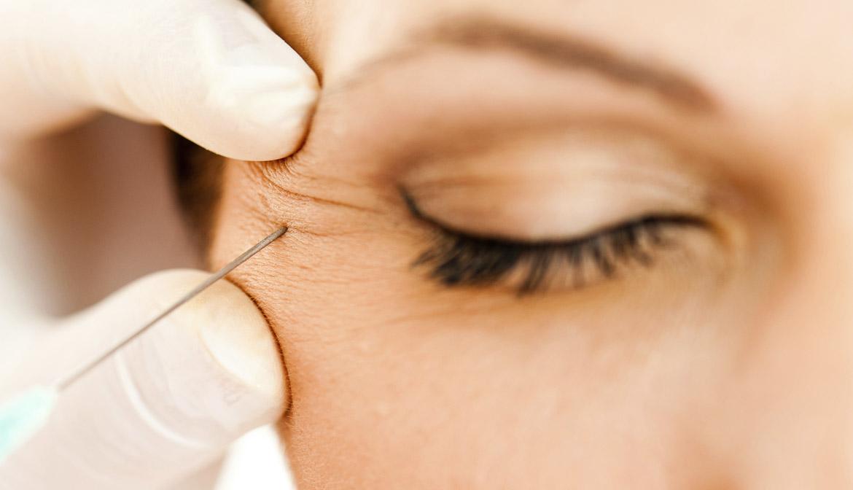 Cirujano inyectando botox a una paciente - Preguntas al cirujano plástico
