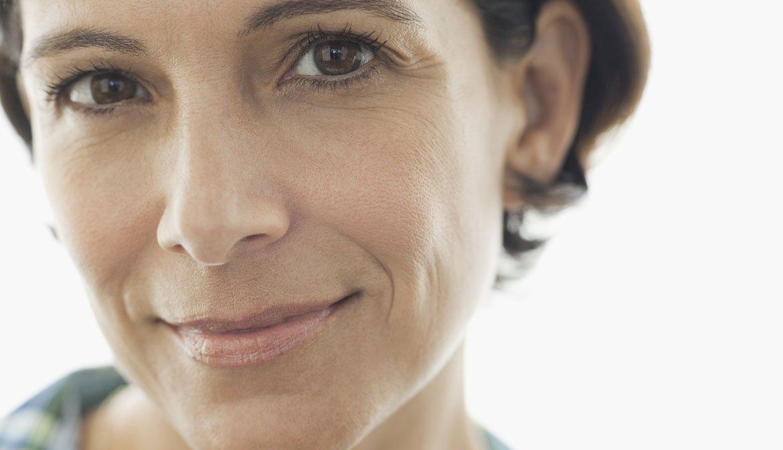 Perfil de una mujer de edad madura - Preguntas al cirujano plástico