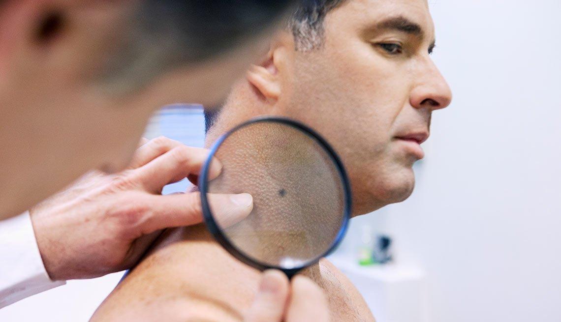 Médico examinando la piel de un paciente - Nuevas tecnologías contra el cáncer de la piel