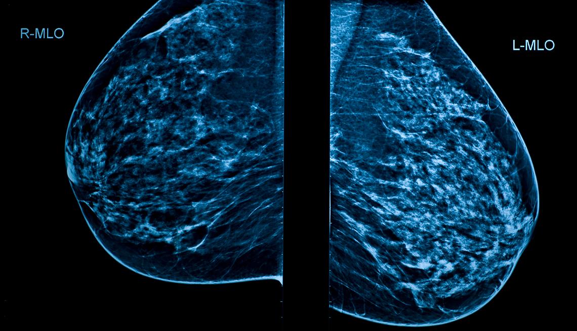 cuanto tardan en dar resultados de mamografia
