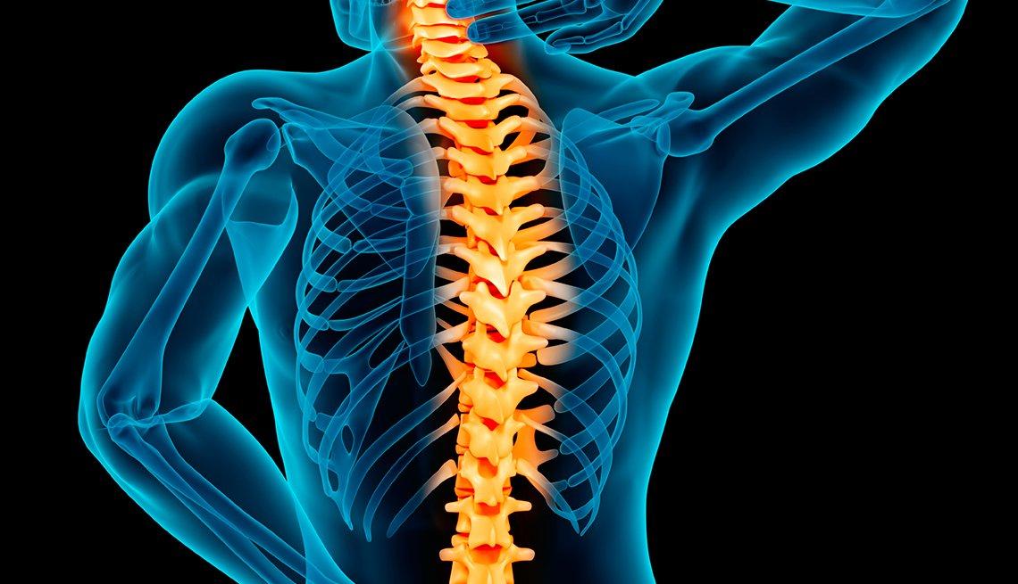 Gráfico de la columna vertebral