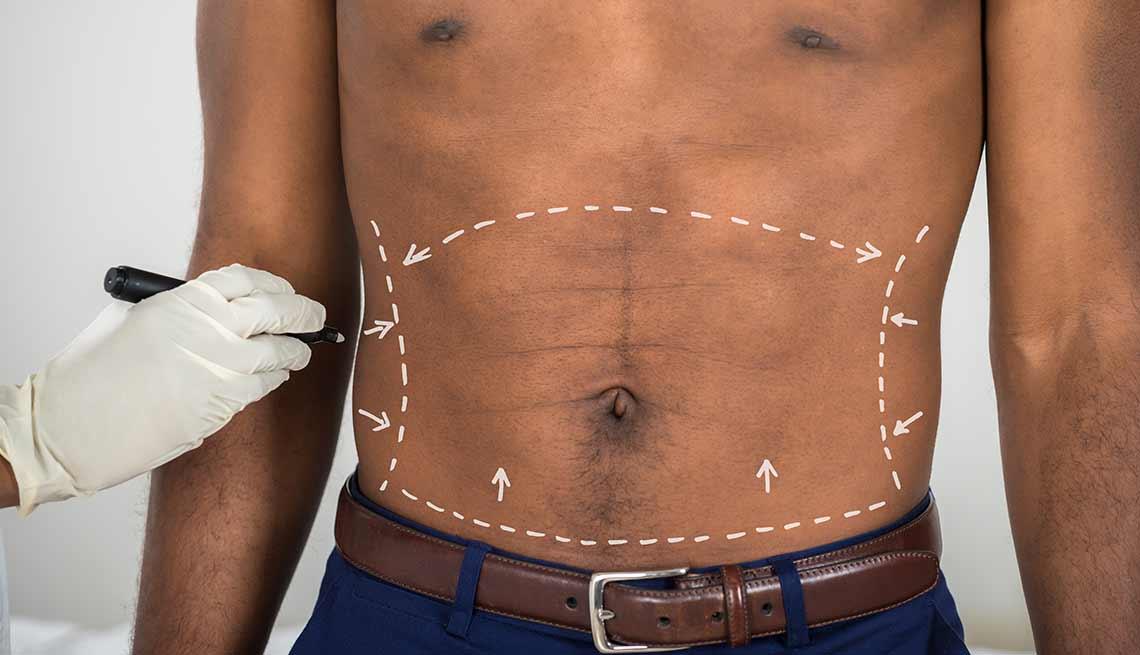 la mejor dieta para marcar el abdomen