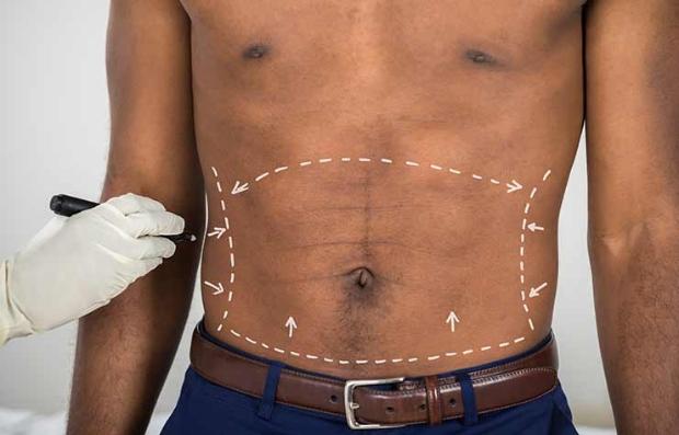Médico marcando el abdomen de un hombre