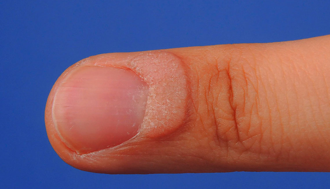 What Are Your Nails Saying About Your Health?