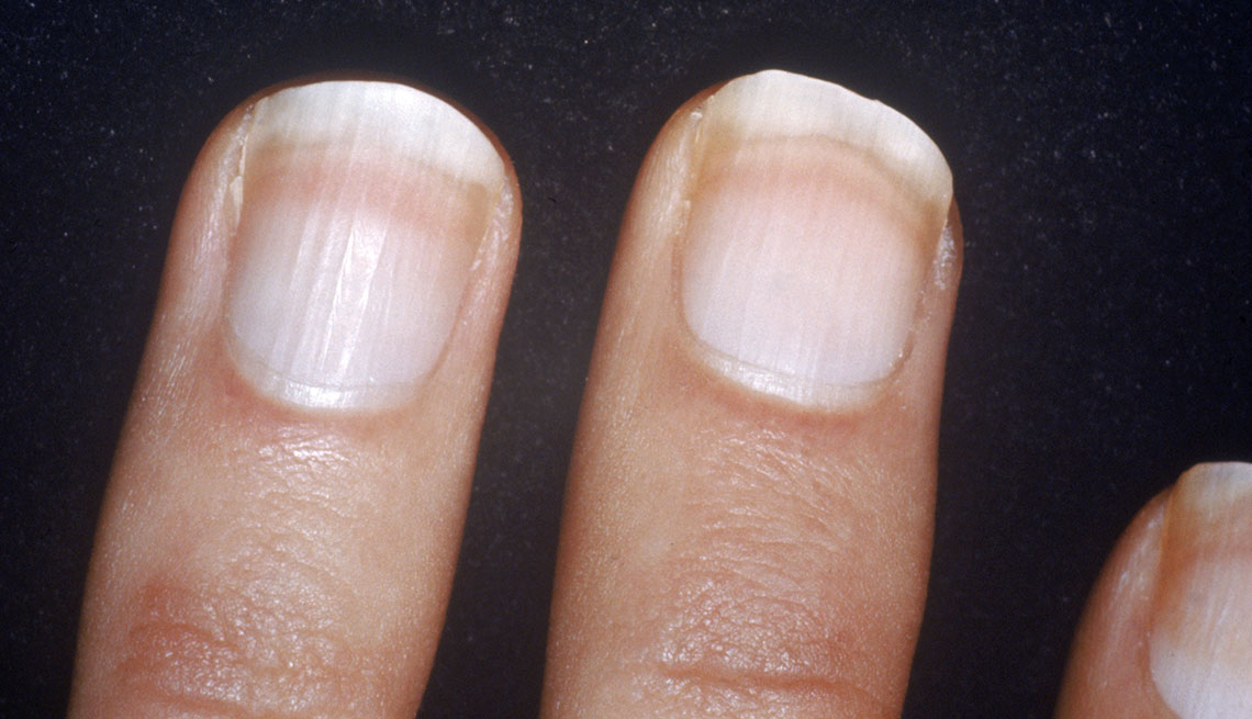 White Spots On Nail Beds 28 Images If You Have White