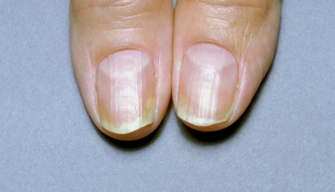 What Are Your Nails Saying About Your Health