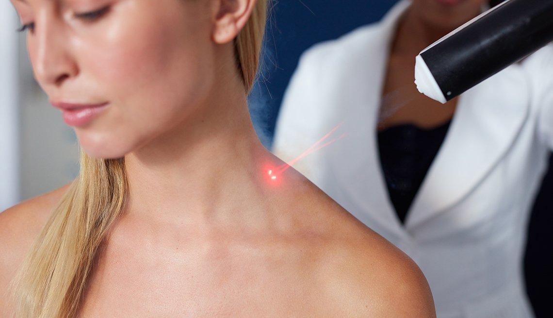 Tratamiento del cuello con láser para mejorar su apariencia