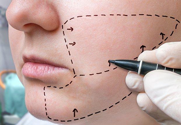 Imagen de una liposucción de cuello y cara, como método para mejorar su apariencia.