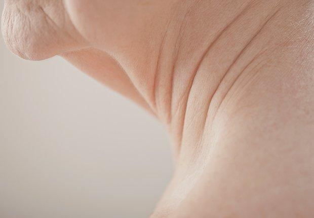 Imagen que muestra la caída del cuello, aprende de algunos tratamientos para mejorar su apariencia