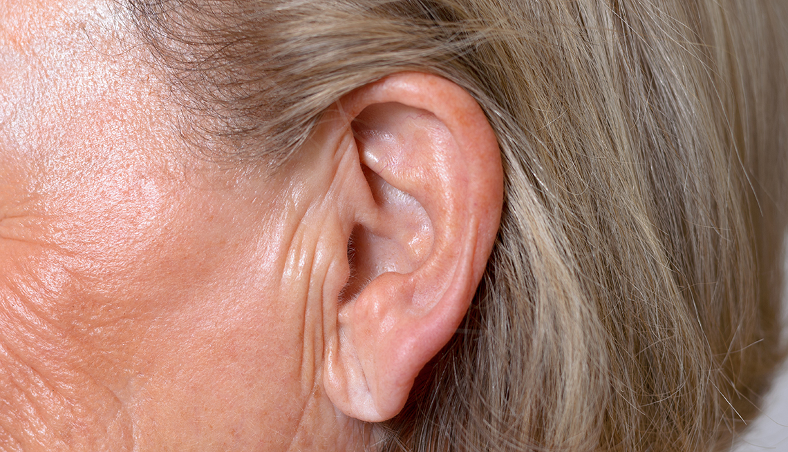 Earlobe Crease May Signal Increased Risk of Stroke