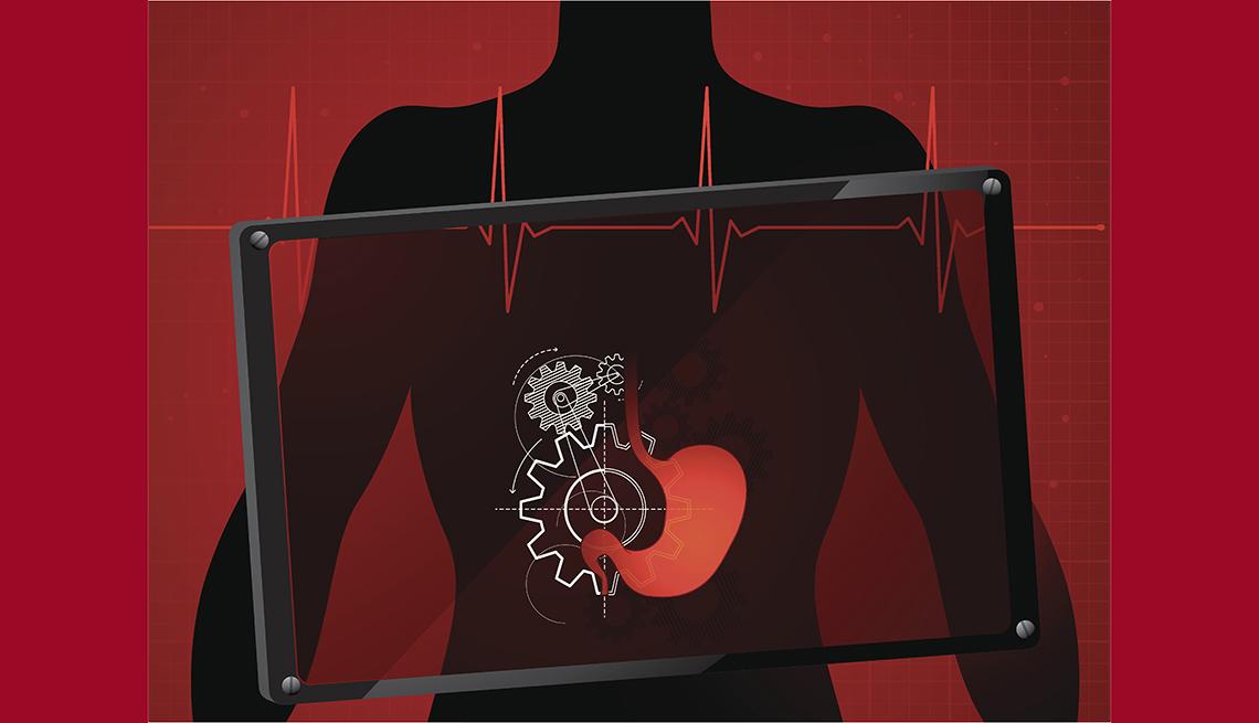 Problemas vesicula biliar dieta