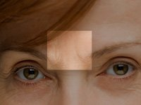 A menopausal woman's facial wrinkles, particularly between the brow, could indicate low bone density.