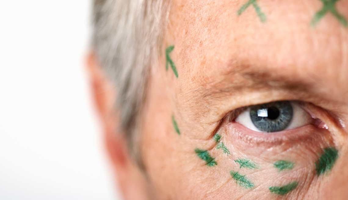 Hombre con marcas en la cara, listo para cirugía