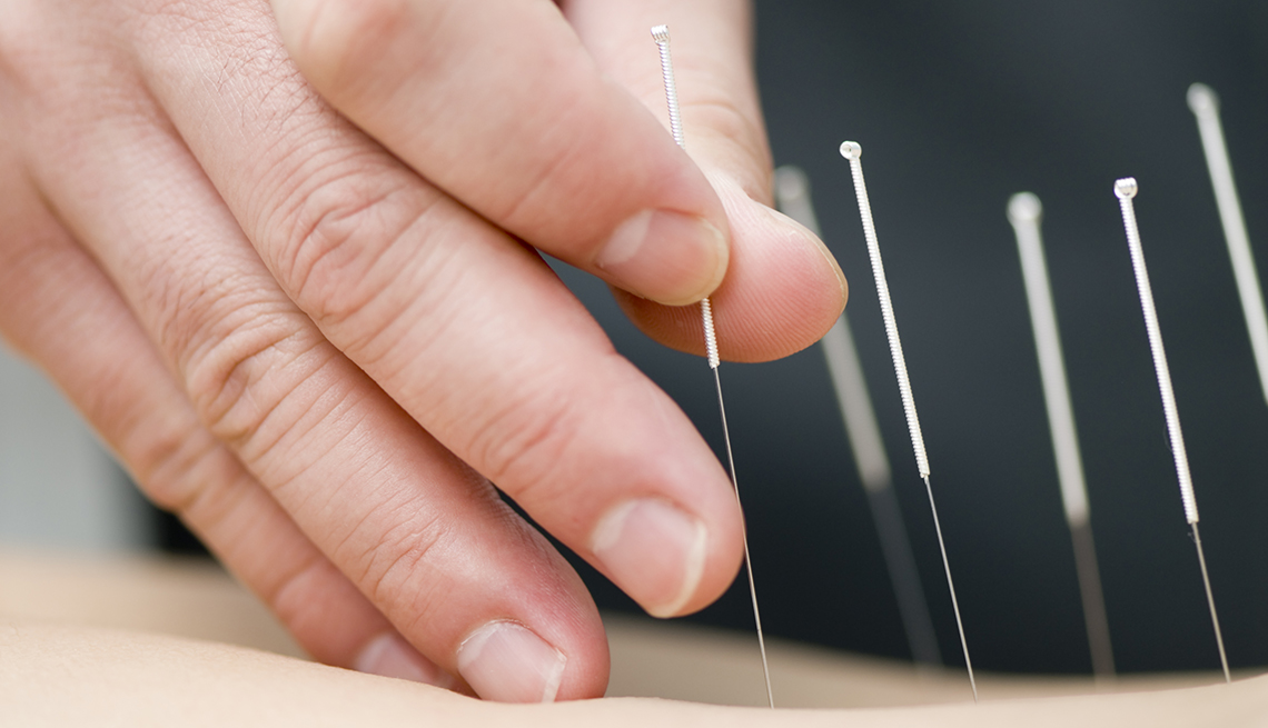 A person getting acupuncture treatment