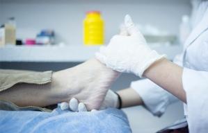Consejos para el cuidado de los pies - Médico masajea el pie de una persona