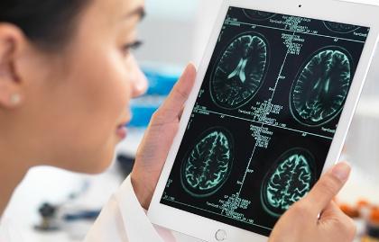 Riesgos y beneficios de los ensayos clínicos - Mujer observa exámenes médicos