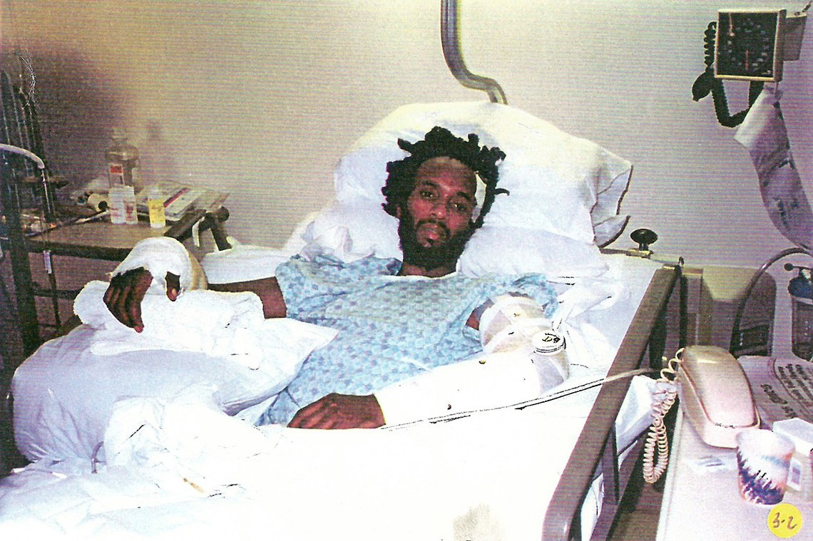 Fantastic Negrito in hospital bed after car accident.