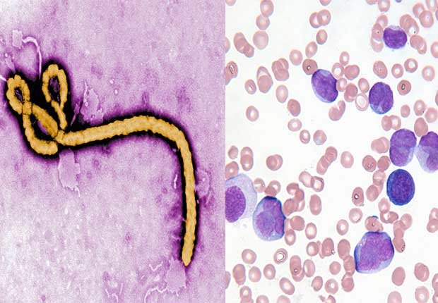 Micrograph of Ebola Virus. Close up of leukemia cells , 2014/2015 Out/In List