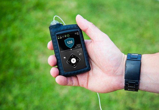 Mini Med 630G - Primer páncreas artificial