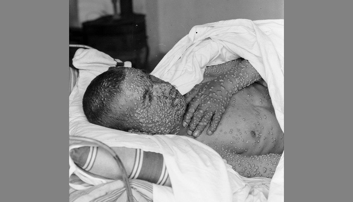 Persona convaleciendo con la varicela
